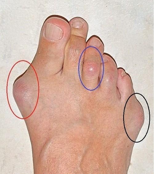 ayak parmak deformasyonu