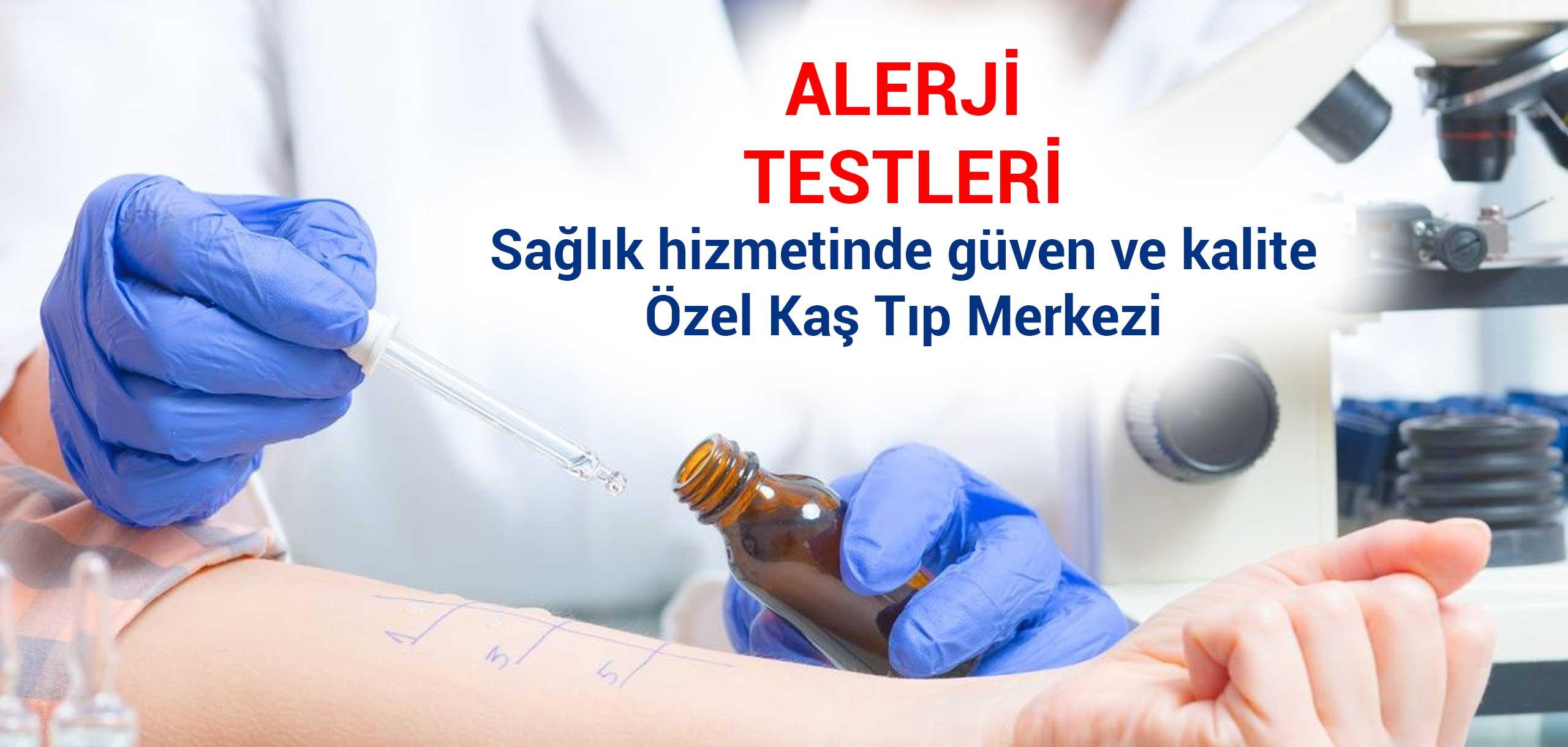 alerji testleri
